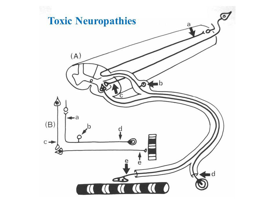 Toxic Neuropathies