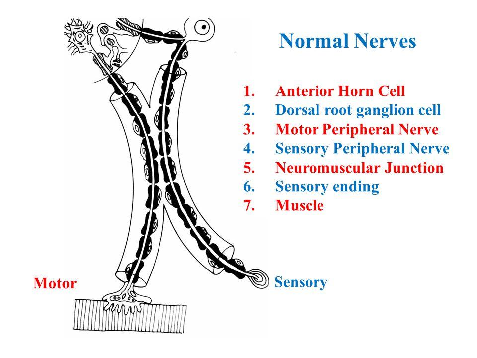 Normal Nerves Motor Sensory 1.Anterior Horn Cell 2.Dorsal root ganglion cell 3.Motor Peripheral Nerve 4.Sensory Peripheral Nerve 5.Neuromuscular Junction 6.Sensory ending 7.Muscle