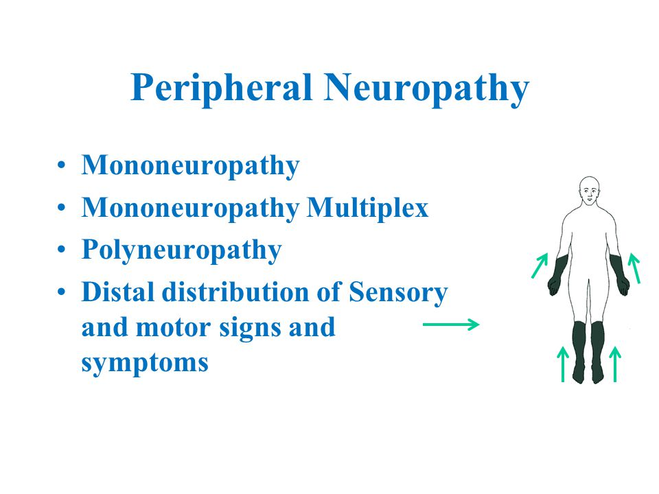 Peripheral Neuropathy Mononeuropathy Mononeuropathy Multiplex Polyneuropathy Distal distribution of Sensory and motor signs and symptoms