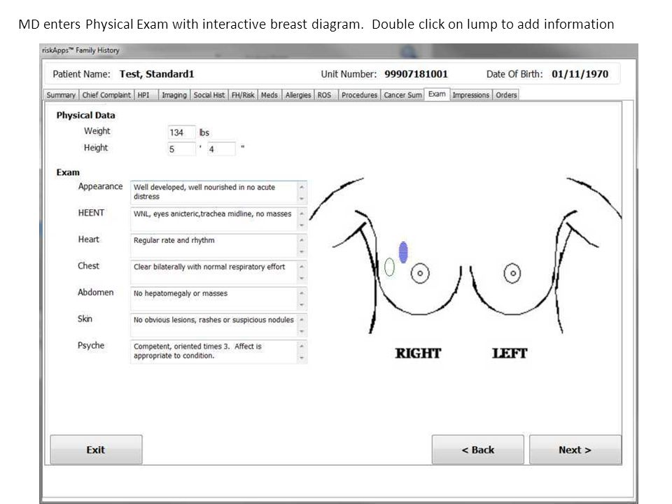 MD enters Physical Exam with interactive breast diagram. Double click on lump to add information
