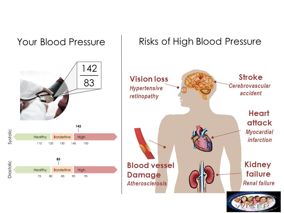 Your Blood Pressure Risks of High Blood Pressure Stroke Cerebrovascular accident Heart attack Myocardial infarction Kidney failure Renal failure Visio