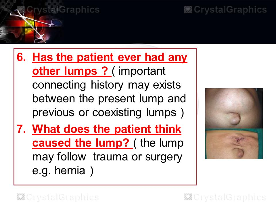 6.Has the patient ever had any other lumps ? ( important connecting history may exists between the present lump and previous or coexisting lumps ) 7.W