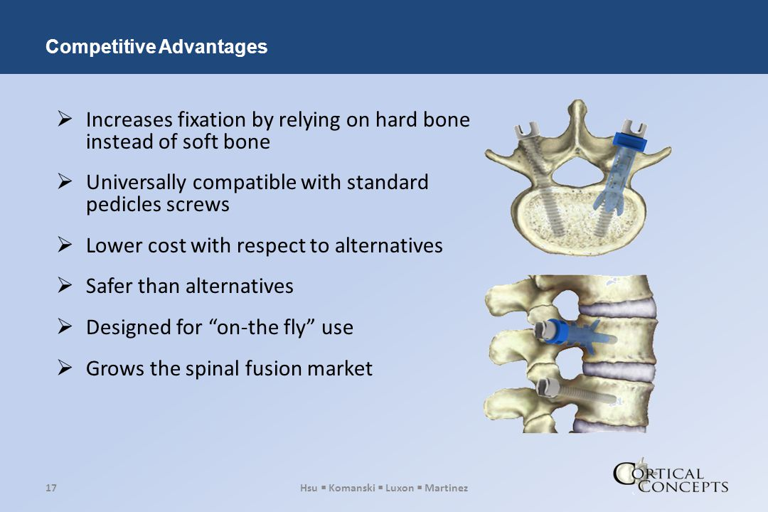  Increases fixation by relying on hard bone instead of soft bone  Universally compatible with standard pedicles screws  Lower cost with respect to