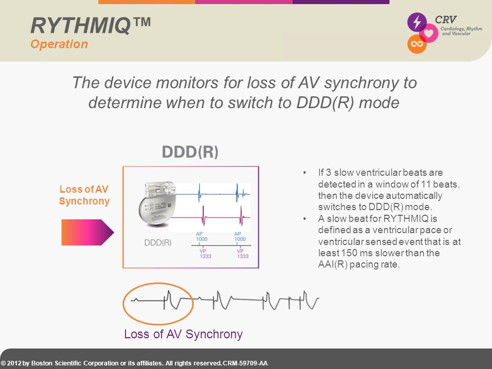 © 2012 by Boston Scientific Corporation or its affiliates. All rights reserved. CRM-59709-AA The device monitors for loss of AV synchrony to determine