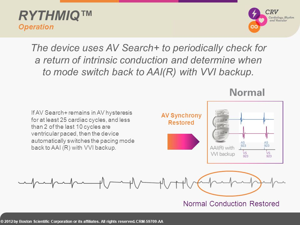 © 2012 by Boston Scientific Corporation or its affiliates. All rights reserved. CRM-59709-AA If AV Search+ remains in AV hysteresis for at least 25 ca