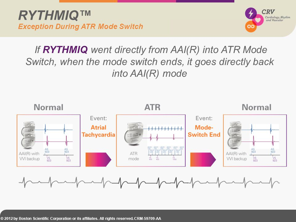 © 2012 by Boston Scientific Corporation or its affiliates. All rights reserved. CRM-59709-AA If RYTHMIQ went directly from AAI(R) into ATR Mode Switch