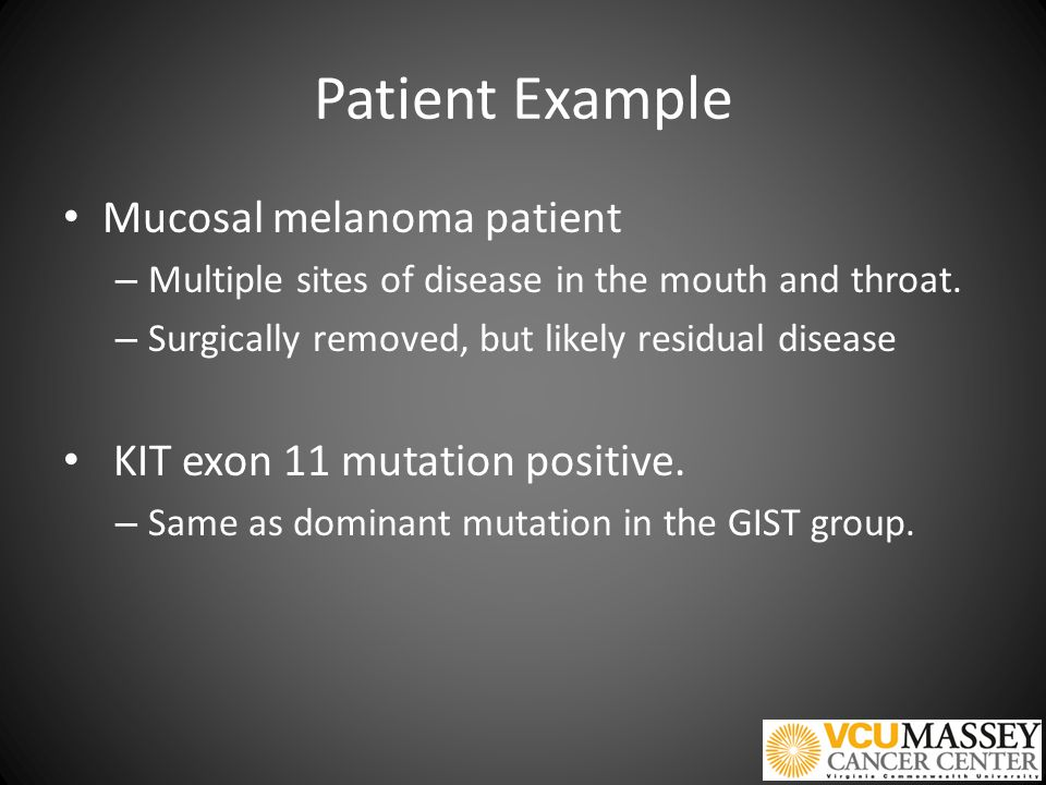 Patient Example Mucosal melanoma patient – Multiple sites of disease in the mouth and throat.