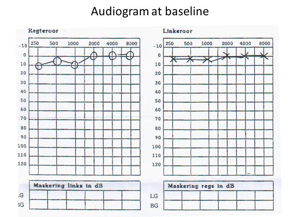Audiogram at baseline