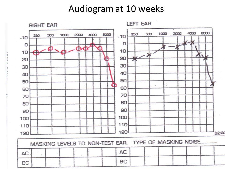 Audiogram at 10 weeks