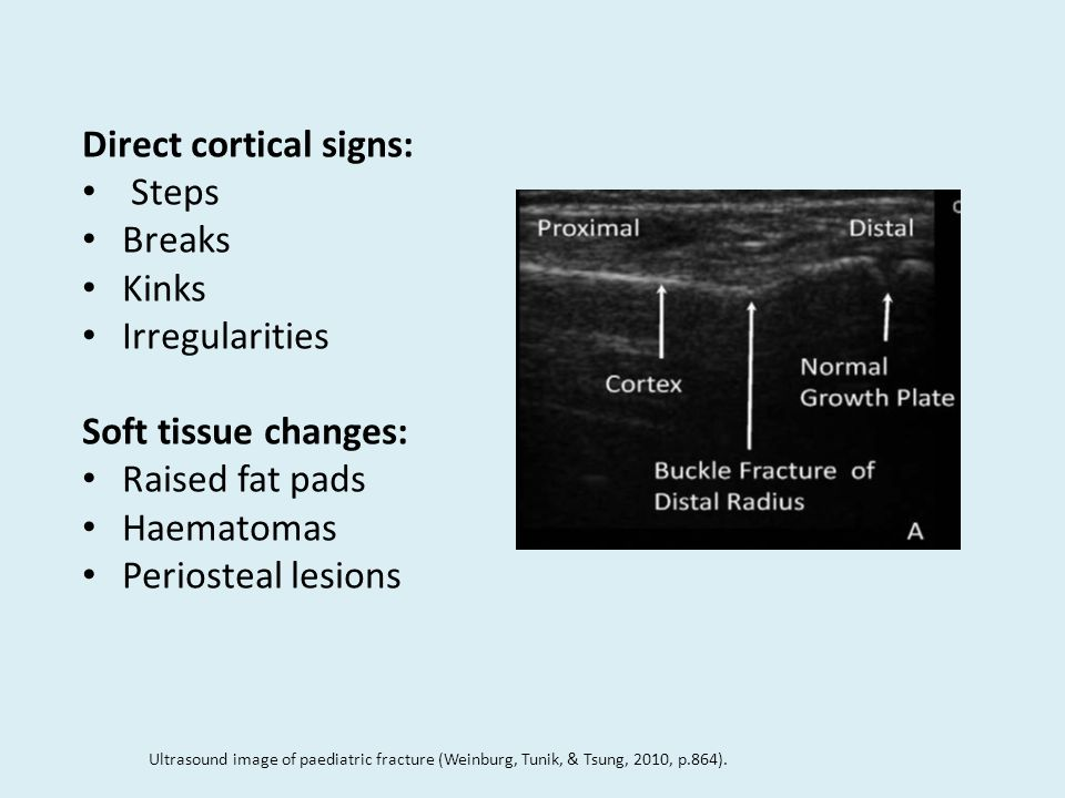 Direct cortical signs: Steps Breaks Kinks Irregularities Soft tissue changes: Raised fat pads Haematomas Periosteal lesions Ultrasound image of paediatric fracture (Weinburg, Tunik, & Tsung, 2010, p.864).
