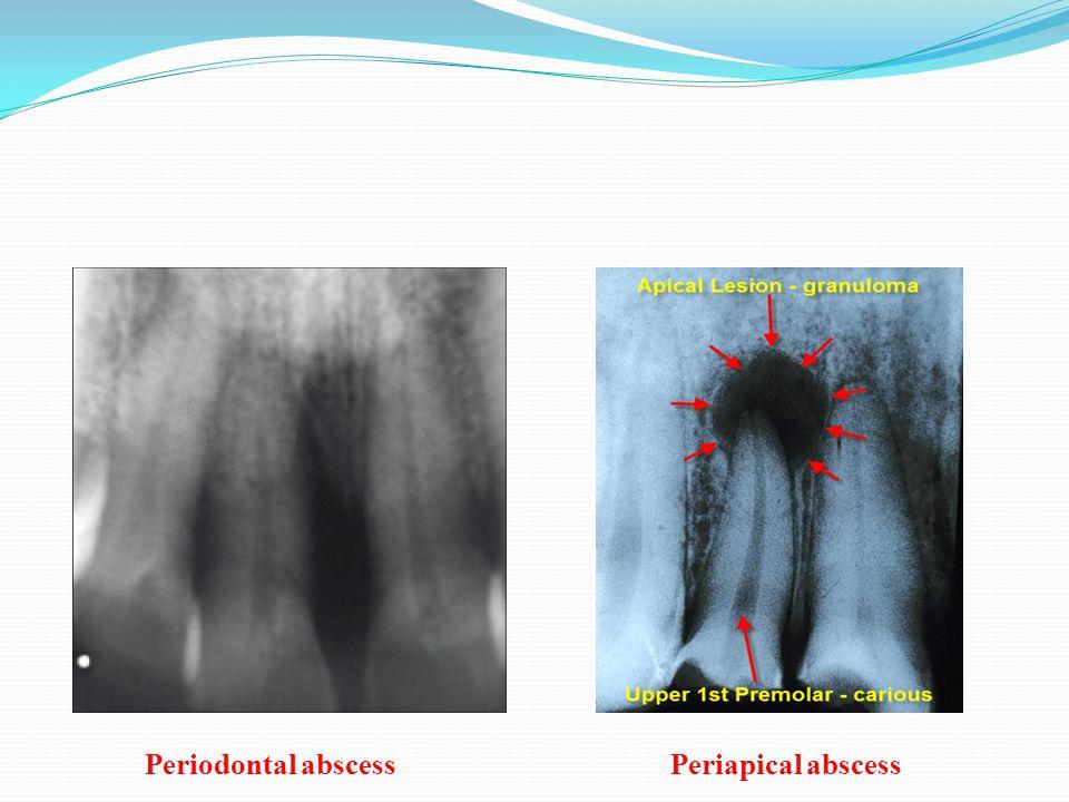 Periodontal abscessPeriapical abscess