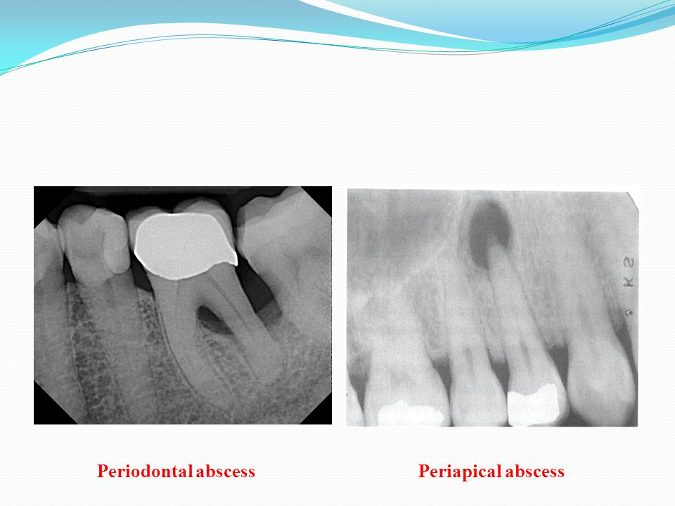 Periodontal abscess Periapical abscess