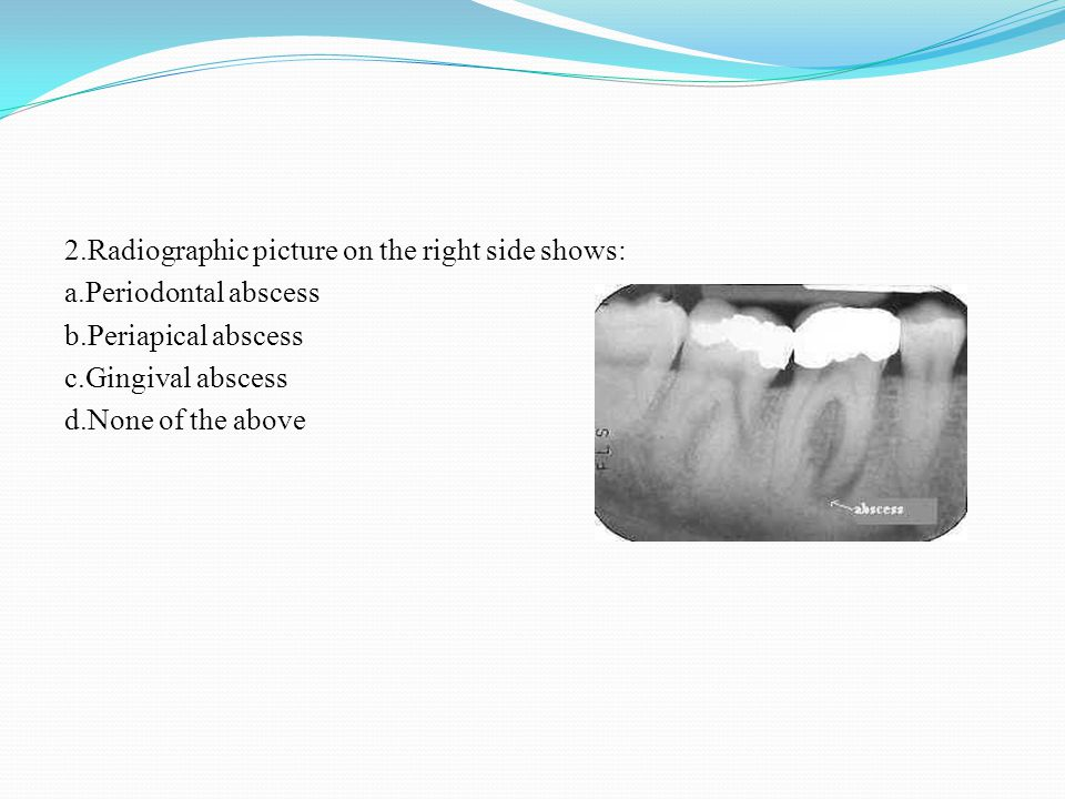 2.Radiographic picture on the right side shows: a.Periodontal abscess b.Periapical abscess c.Gingival abscess d.None of the above