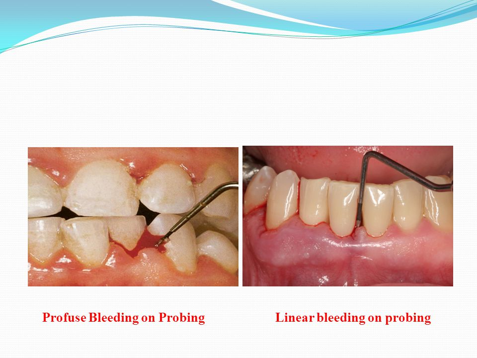 Profuse Bleeding on ProbingLinear bleeding on probing