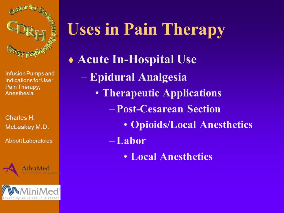 Uses in Pain Therapy  Acute In-Hospital Use –Epidural Analgesia Therapeutic Applications –Post-Cesarean Section Opioids/Local Anesthetics –Labor Local Anesthetics Infusion Pumps and Indications for Use: Pain Therapy; Anesthesia Charles H.