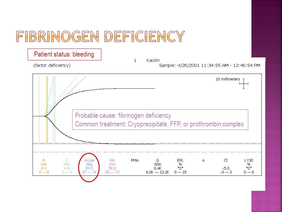 Probable cause: fibrinogen deficiency Common treatment: Cryoprecipitate, FFP, or prothrombin complex Patient status: bleeding