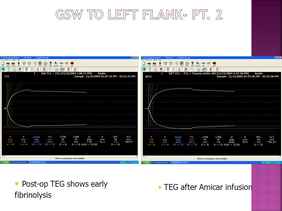 Post-op TEG shows early fibrinolysis TEG after Amicar infusion