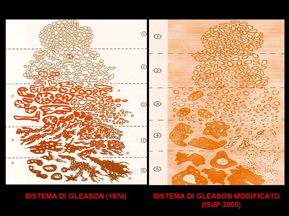 SISTEMA DI GLEASON (1974) SISTEMA DI GLEASON MODIFICATO (ISUP 2005)