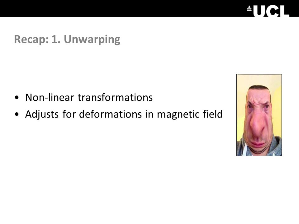 Recap: 1. Unwarping Non-linear transformations Adjusts for deformations in magnetic field