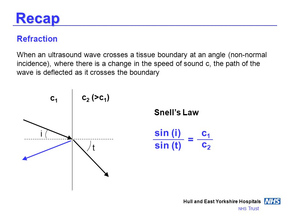 Recap Refraction When an ultrasound wave crosses a tissue boundary at an angle (non-normal incidence), where there is a change in the speed of sound c, the path of the wave is deflected as it crosses the boundary Hull and East Yorkshire Hospitals NHS Trust c1c1 c 2 (>c 1 ) i t Snell's Law sin (i) sin (t) c1c1 c2c2 =