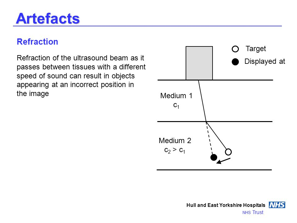 Artefacts Hull and East Yorkshire Hospitals NHS Trust Refraction Refraction of the ultrasound beam as it passes between tissues with a different speed of sound can result in objects appearing at an incorrect position in the image Medium 1 c 1 Medium 2 c 2 > c 1 Target Displayed at