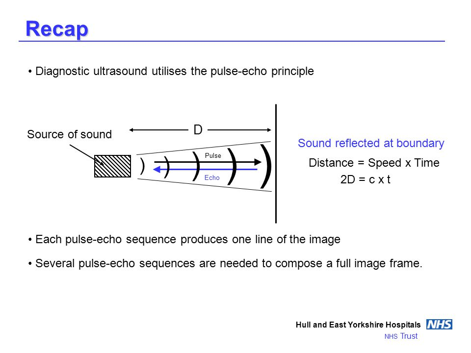 Recap Hull and East Yorkshire Hospitals NHS Trust Diagnostic ultrasound utilises the pulse-echo principle Each pulse-echo sequence produces one line of the image Several pulse-echo sequences are needed to compose a full image frame.