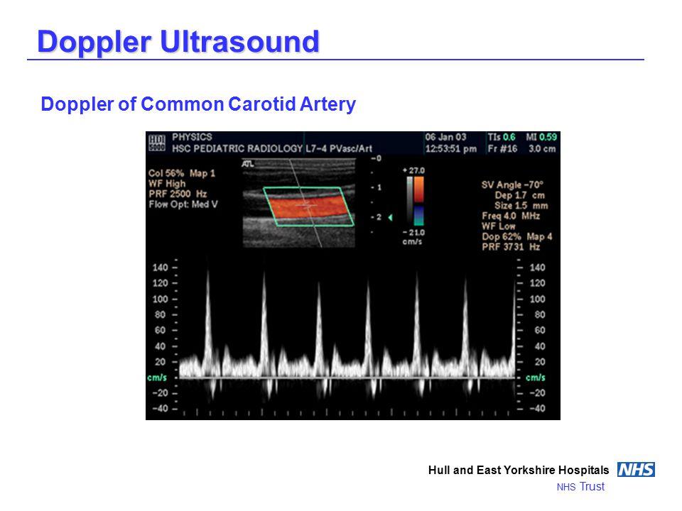 Doppler Ultrasound Hull and East Yorkshire Hospitals NHS Trust Doppler of Common Carotid Artery