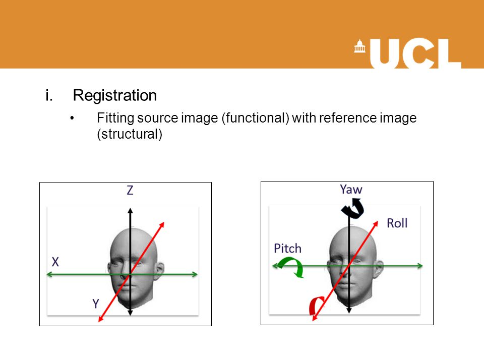 i.Registration Fitting source image (functional) with reference image (structural)