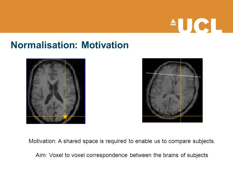 Normalisation: Motivation Motivation: A shared space is required to enable us to compare subjects. Aim: Voxel to voxel correspondence between the brai