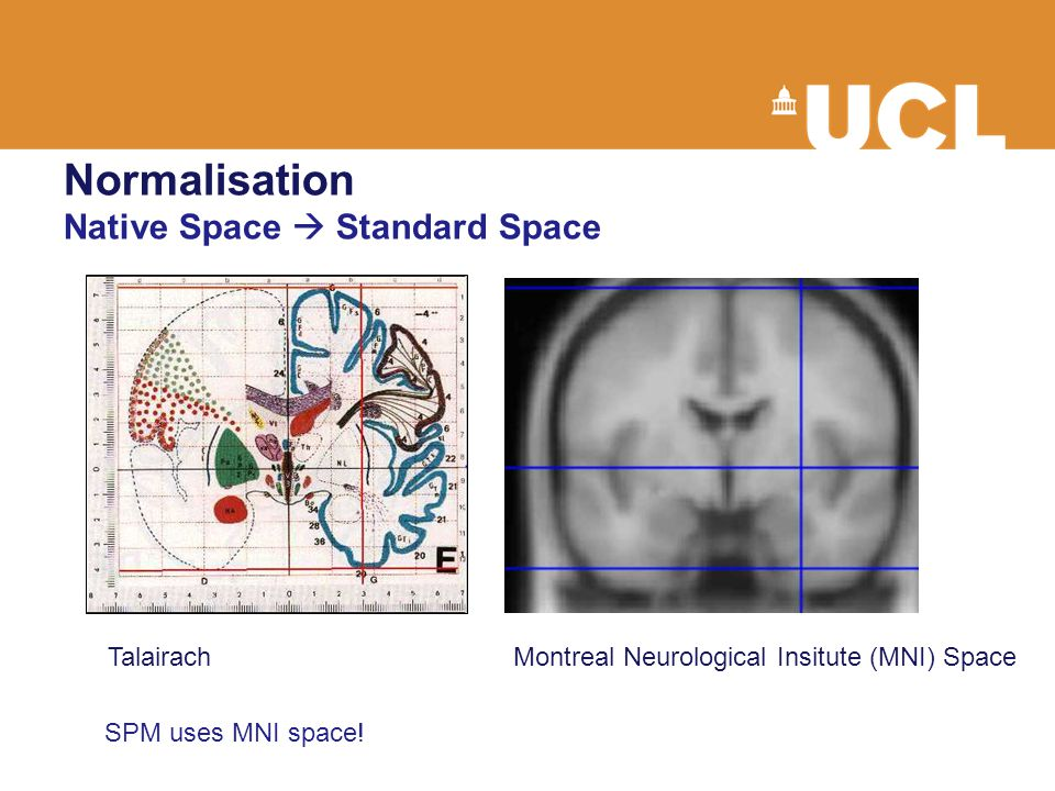 Normalisation Native Space  Standard Space TalairachMontreal Neurological Insitute (MNI) Space SPM uses MNI space!
