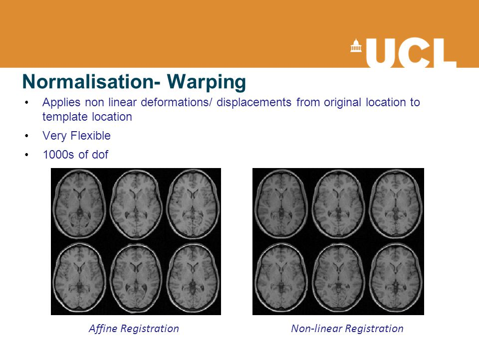 Normalisation- Warping Applies non linear deformations/ displacements from original location to template location Very Flexible 1000s of dof Affine RegistrationNon-linear Registration