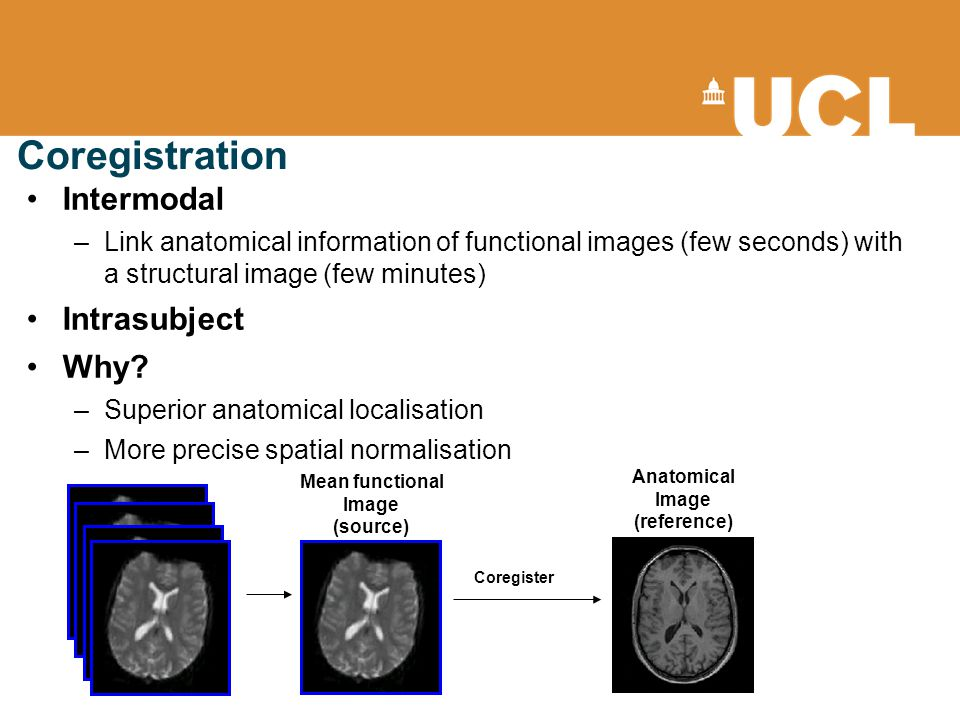Coregistration Intermodal –Link anatomical information of functional images (few seconds) with a structural image (few minutes) Intrasubject Why.