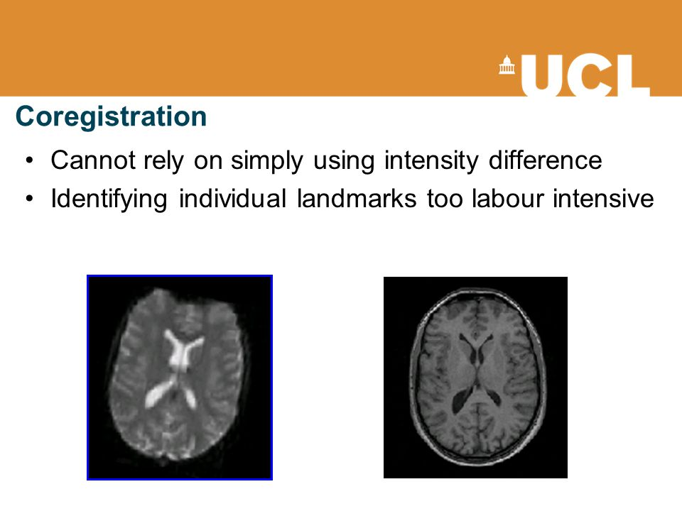 Coregistration Cannot rely on simply using intensity difference Identifying individual landmarks too labour intensive