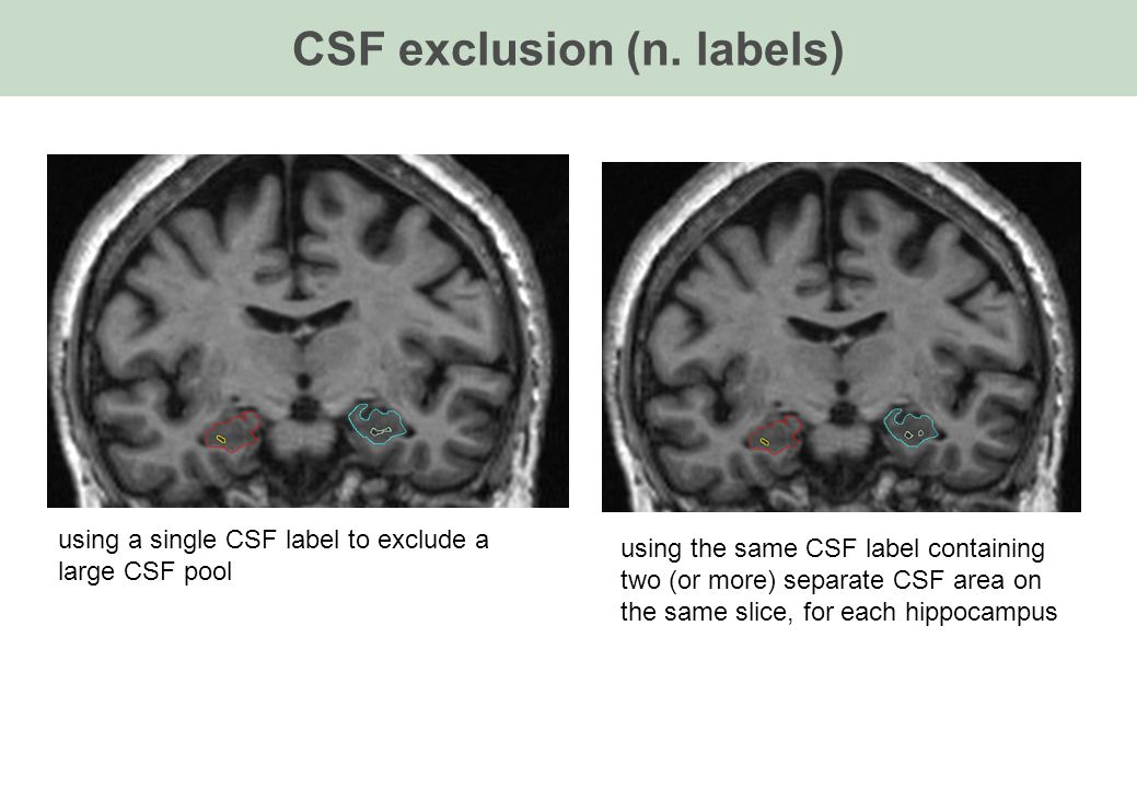 CSF exclusion (n. labels) using the same CSF label containing two (or more) separate CSF area on the same slice, for each hippocampus using a single C
