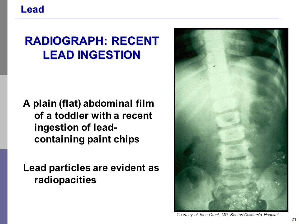 Lead 21 RADIOGRAPH: RECENT LEAD INGESTION A plain (flat) abdominal film of a toddler with a recent ingestion of lead- containing paint chips Lead particles are evident as radiopacities Courtesy of John Graef, MD, Boston Children s Hospital