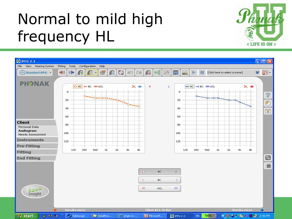 Normal to mild high frequency HL