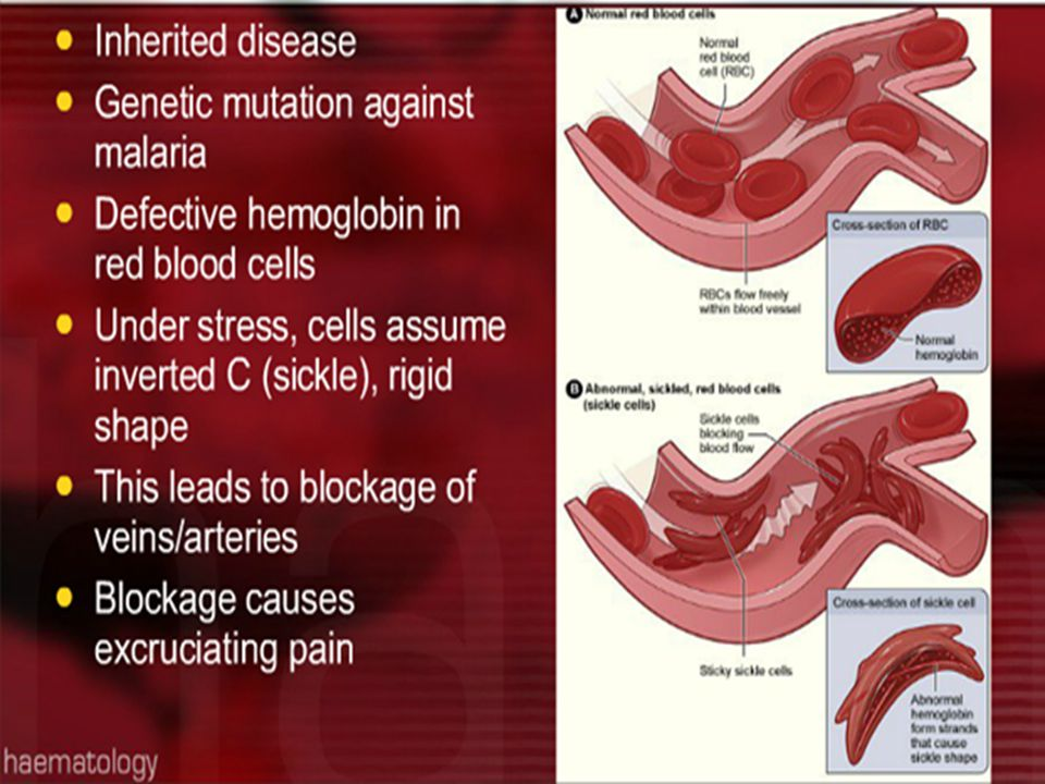 SS gene (homozygous SS)One S gene Sickle cell anemia, 80% to 100% of the hemoglobin is HbS Sickle cell trait, 20% to 40% of the hemoglobin is HbS No symptoms under normal conditions.Does not have any health problems But in sickling crises such as infection or dehydration There is some symptom like haemolytic anaemia (jaundice)