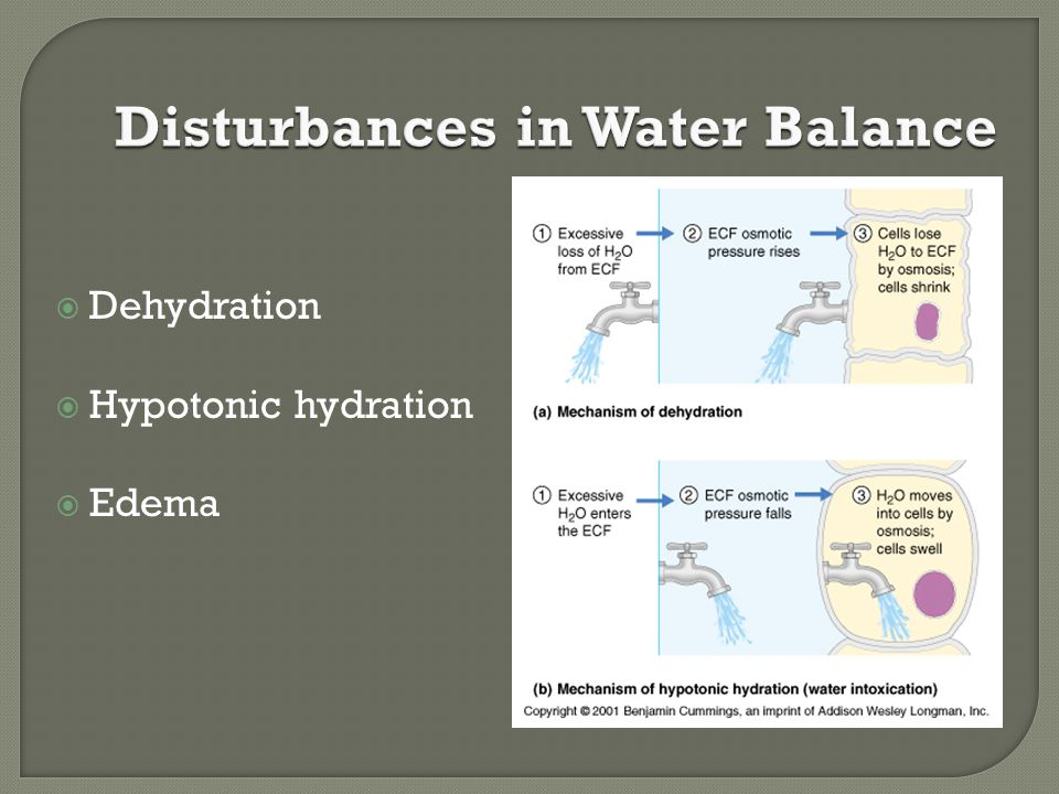  Dehydration  Hypotonic hydration  Edema