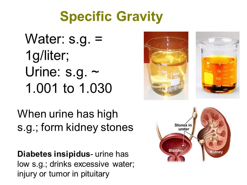 Normal Constitutes of Urine