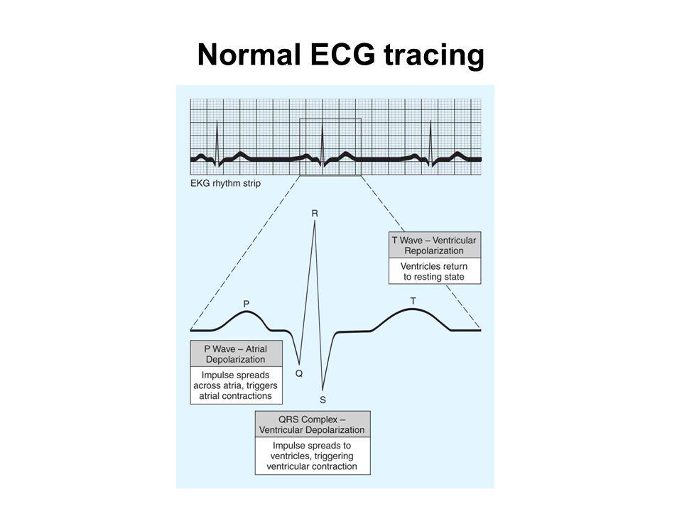 Normal ECG tracing