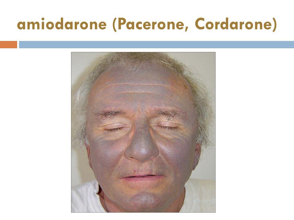 amiodarone (Pacerone, Cordarone)