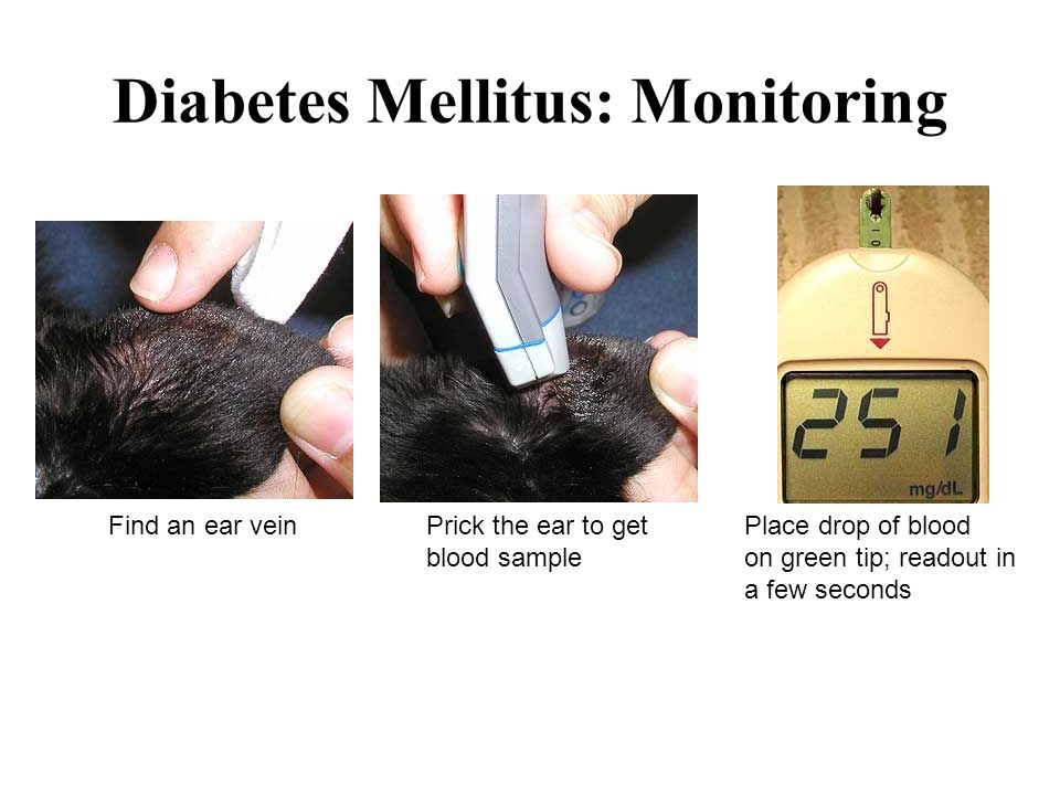 Diabetes Mellitus: Monitoring Find an ear veinPrick the ear to get Place drop of blood blood sampleon green tip; readout in a few seconds