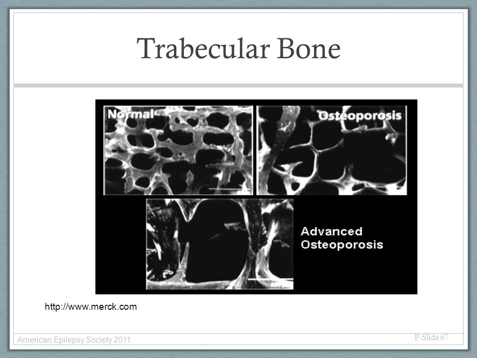 Trabecular Bone P-Slide 67 http://www.merck.com American Epilepsy Society 2011