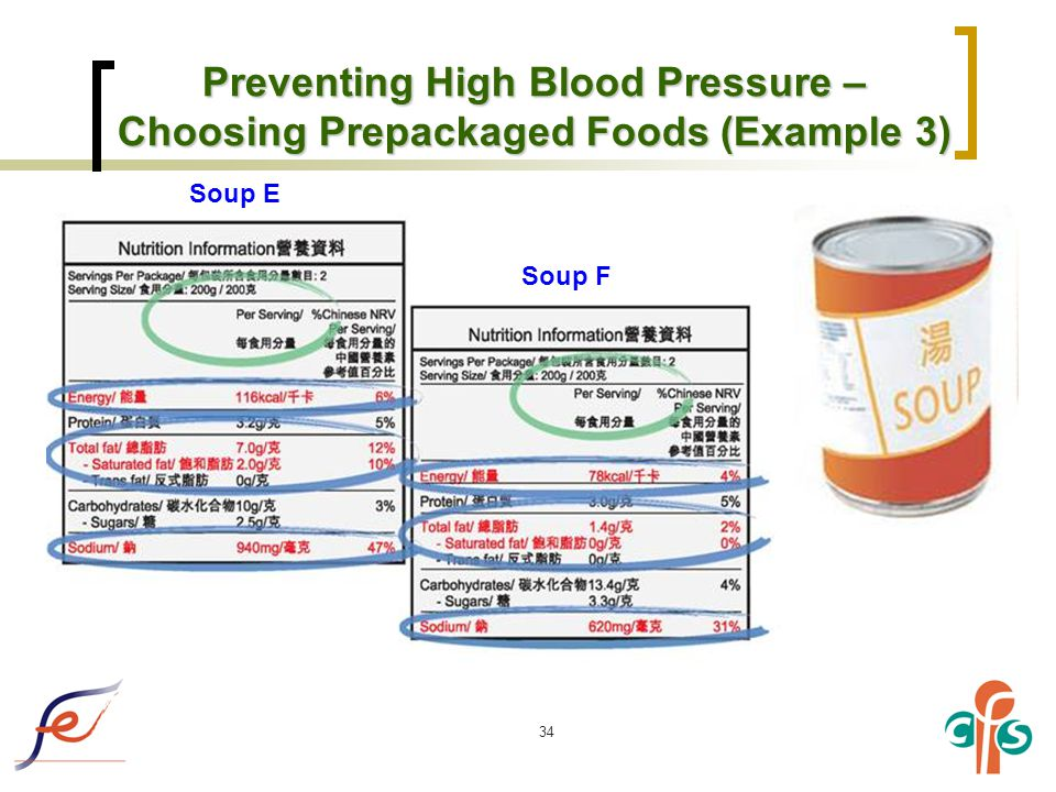 34 Preventing High Blood Pressure – Choosing Prepackaged Foods (Example 3) Soup E Soup F