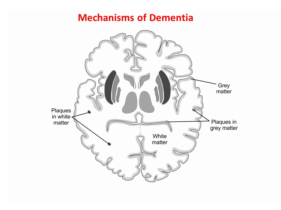 Mechanisms of Dementia