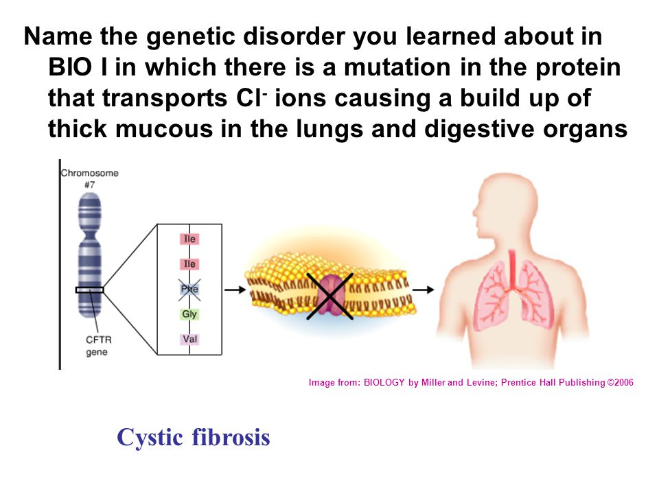 Name the genetic disorder you learned about in BIO I in which there is a mutation in the protein that transports Cl - ions causing a build up of thick