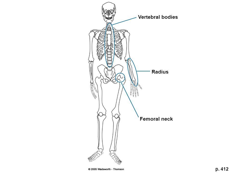 Vertebral bodies Radius Femoral neck p. 412