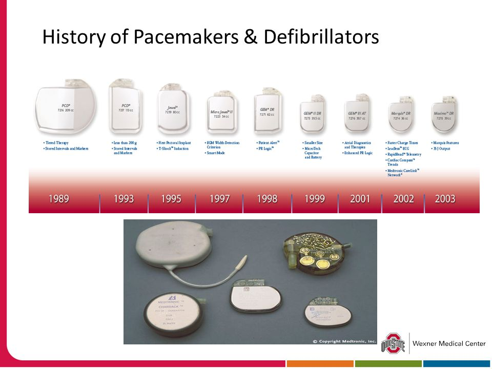 History of Pacemakers & Defibrillators