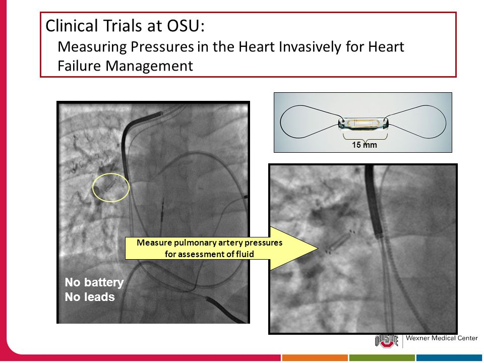 Clinical Trials at OSU: Measuring Pressures in the Heart Invasively for Heart Failure Management Measure pulmonary artery pressures for assessment of fluid 15 mm No battery No leads