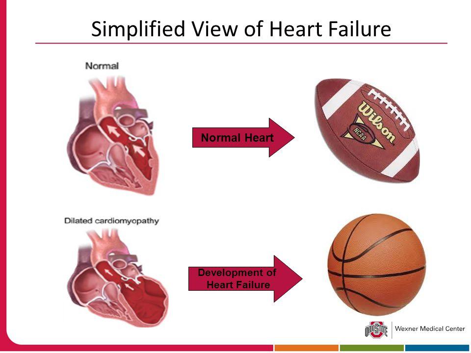 Normal Heart Development of Heart Failure Simplified View of Heart Failure